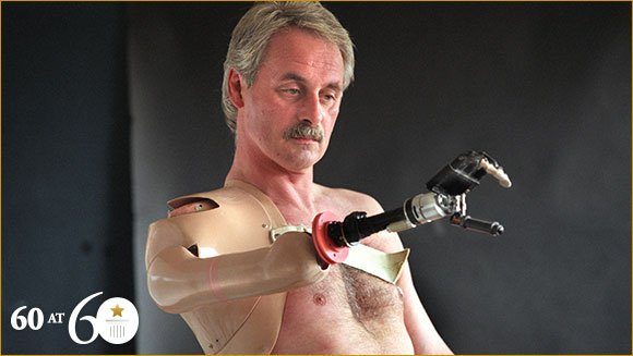 1993-first-bionic-arm_tcm25-392886