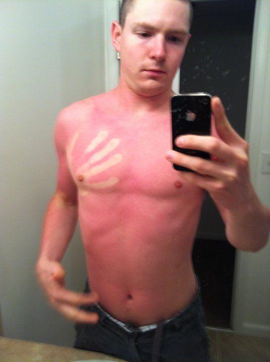 13 причин не забывать крем для загара мазать кожу солнце обгорел ожог последствия жизнь лайфхак отвратительные мужики