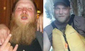 Бухло: до и после — фото людей, которые перестали пить