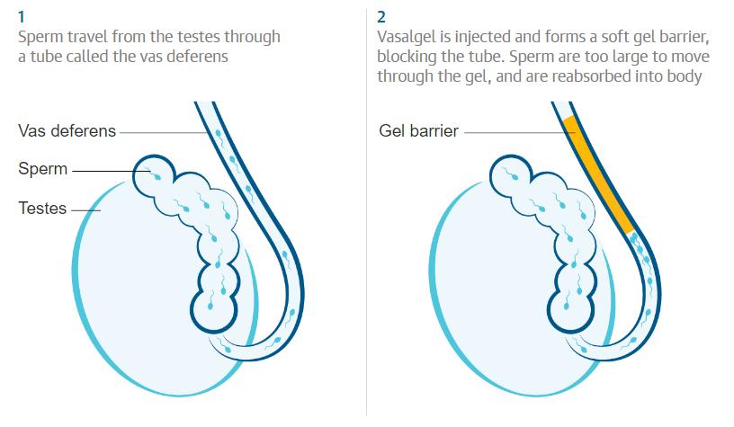 vasalgel контрацептив для мужчин новое противозачаточное наука секс предотвращение беременности отвратительные мужики disgusting men