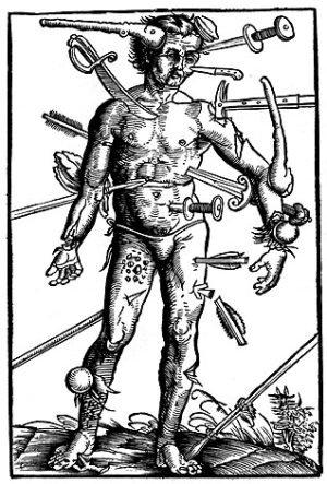 Иллюстрация из работы фон Герсдорфа, демонстрирующая многообразие ранений