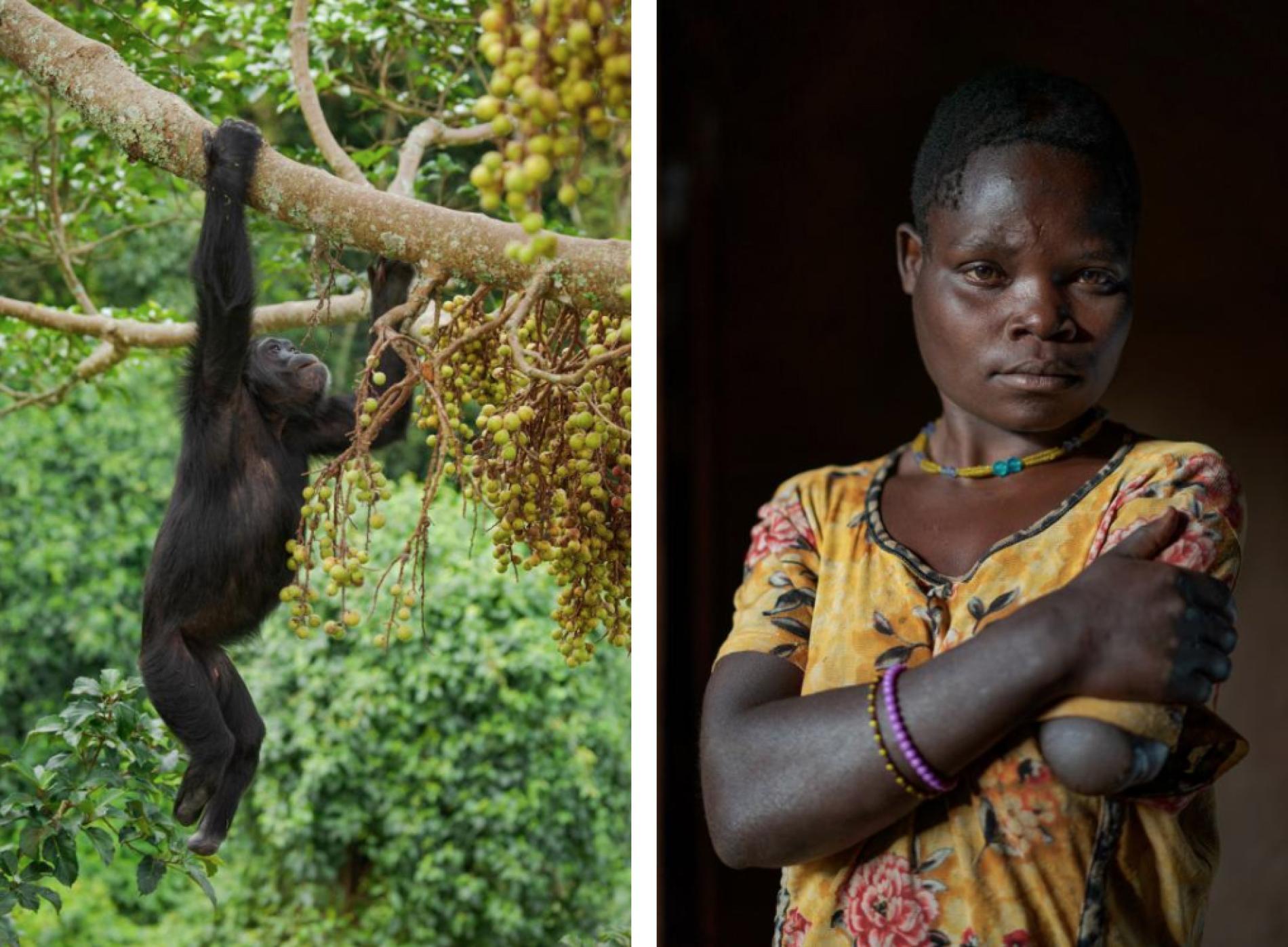 Шимпанзе, потерявший обе стопы в человеческих ловушках и Тедди Атухайре, потерявшая руку из-за нападения примата.