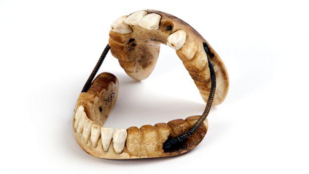 зубы ватерлоо отвратительные мужики