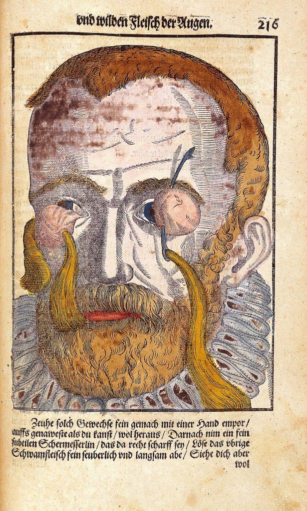 Жутковатая находка: сюрреалистические иллюстрации из учебника по офтальмологии XVI века